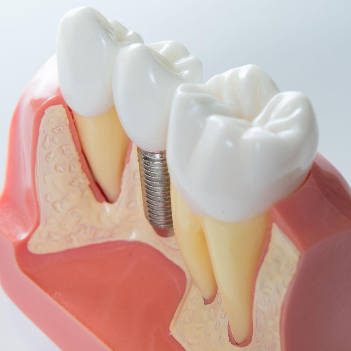 ugradnja implanta implantati cena