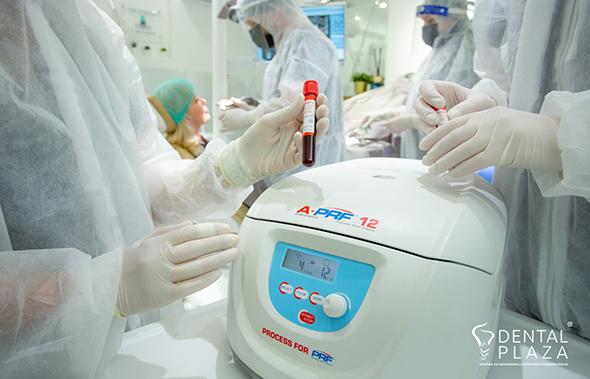 stomatoloski aparat