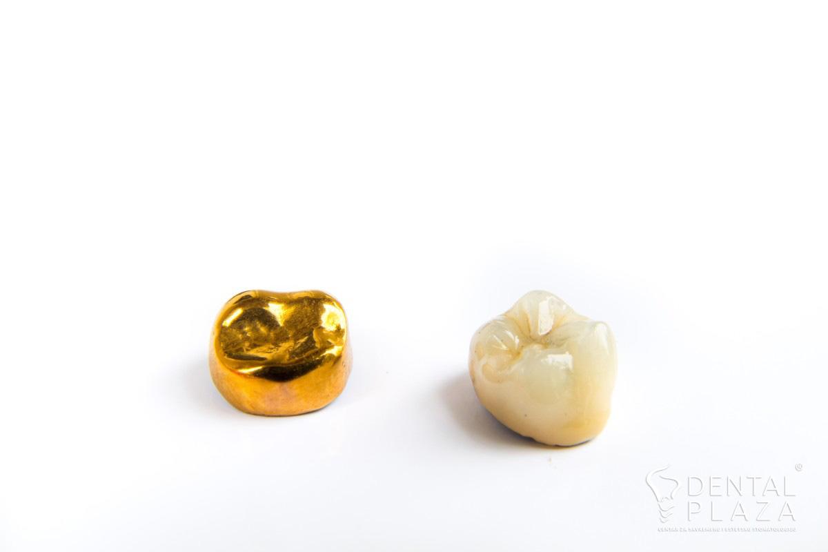 zlatna keramika